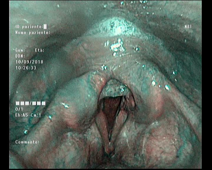Reflusso laringeo evidenziato con tecnica NBI